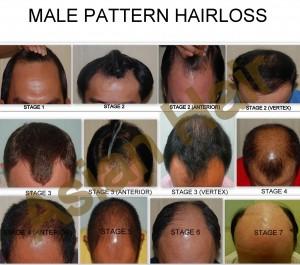 male pattern