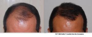 FUE Philippines  |Asian Hair Restoration Center