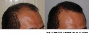 FUE Hair Transplant |Asian Hair Restoration Center