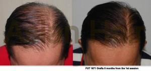 Hair loss treatment |Asian Hair Restoration Center