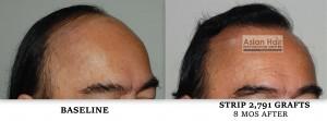 Strip Surgery Results |Asian Hair Restoration Center