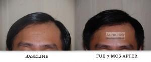 Follicular Unit Extraction result  Philippines |Asian Hair Restoration Center