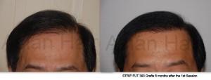 Hair loss solution Philippines |Asian Hair Restoration Center
