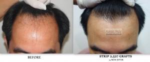 Hair loss solution Manila Philippines |Asian Hair Restoration Center