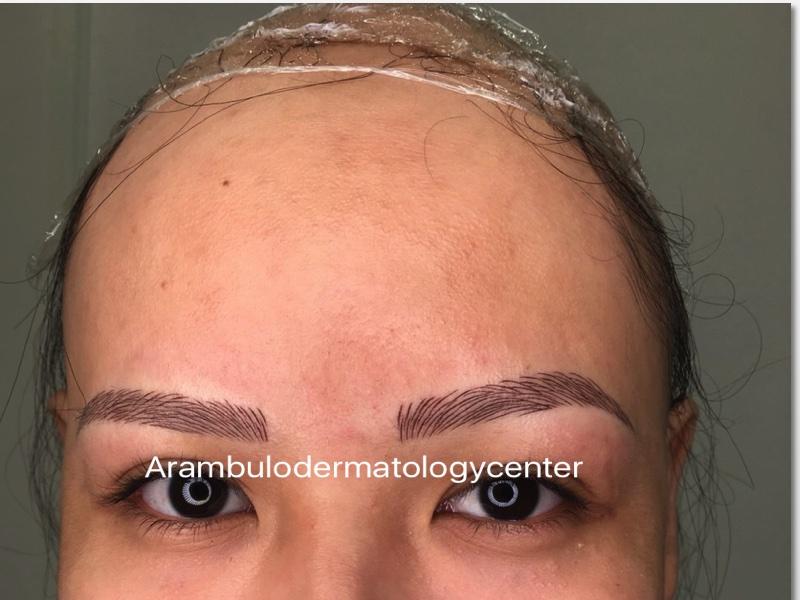 alopecia universlis fter microbaldng final
