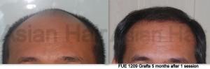 Hair Transplant results |Asian Hair Restoration Center