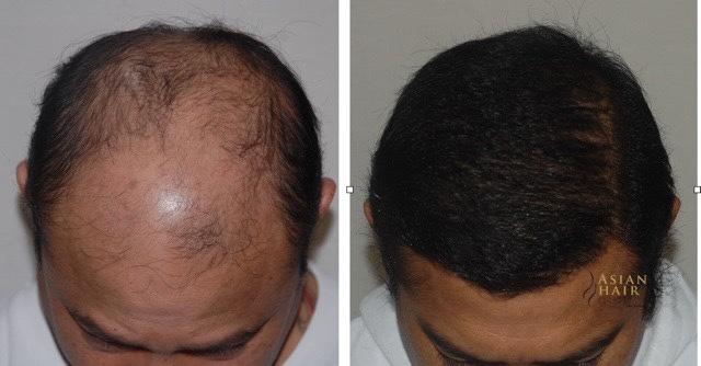 Hair Transplant Results Philippines | Dr. Julieta Peralta Arambulo
